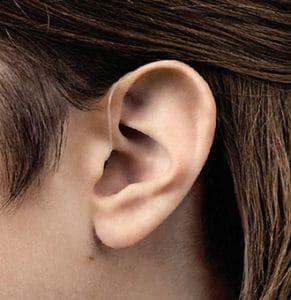Hinter-dem-Ohr-Hörgeräte mit/ohne Akku 6