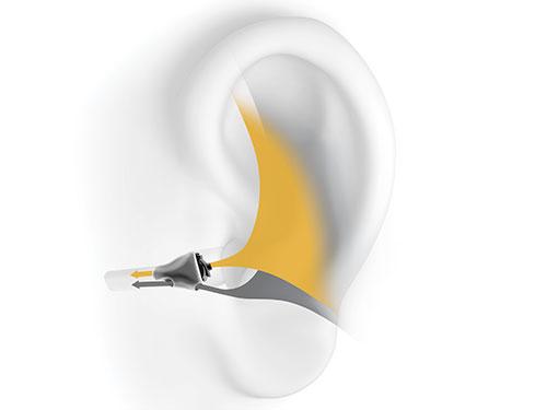 CIC-Hörgeräte sind so gut wie unsichtbar